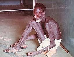 starving african man
