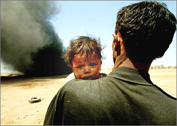 man holding baby with burnt face